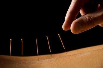 Akupunkturnadeln im Rücken